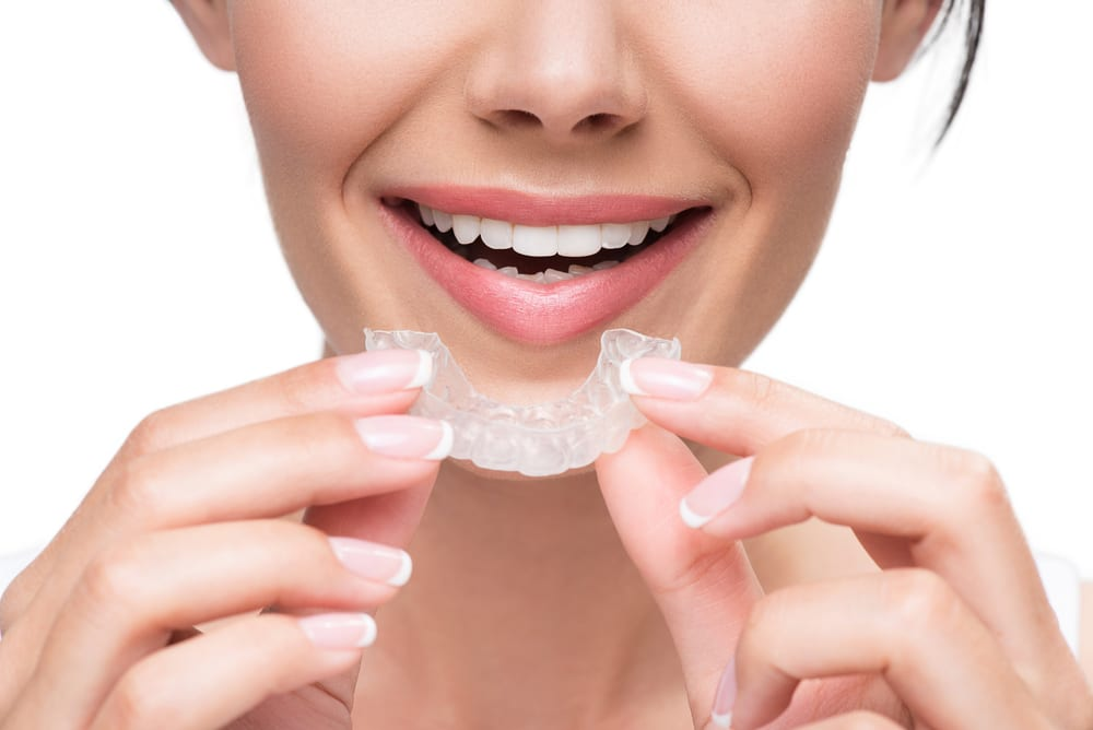 happy cheerful joyous woman holding aligners manicured nails pretty smile laugh lines